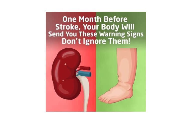 Warning Signs One Month Before Stroke